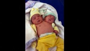 Au Brésil, un bébé à deux têtes, avec deux cerveaux fonctionnant de façon distincte, est né. Le 19/12/2011