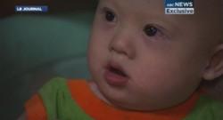 Un bébé trisomique abandonné par ses parents adoptifs.