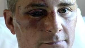 TF1/LCI : Le capitaine Ludovic Aubriot, l'un des CRS victime d'un guet-apens dans le quartier sensible des Tarterêts