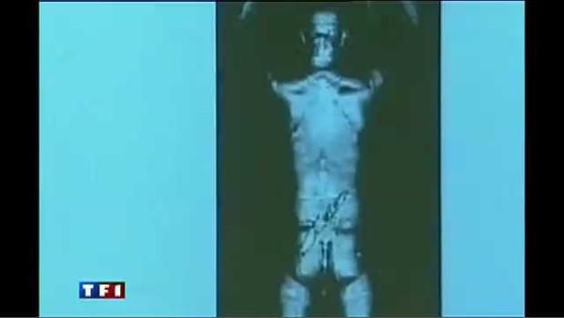 Une image réalisée grâce à un scanner corporel.
