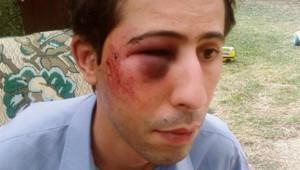 Nouredine R., agressé en juillet 2008 par des jeunes se revendiquant comme nazis