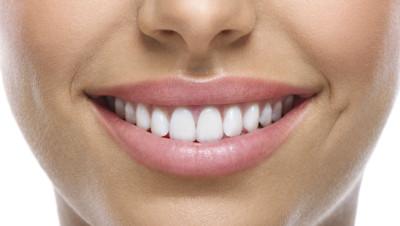 sourire dents dentiste blanchiment bar à sourire