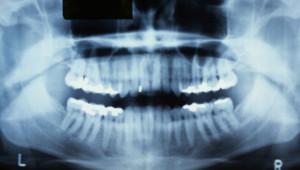 Une radiographie des dents