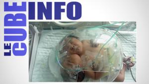 Un bébé chinois naît avec deux têtes