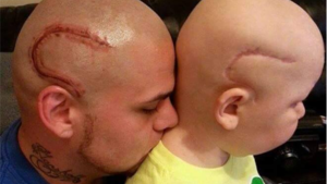 Josh, avec son tatouage, et son fils Gabriel avec sa cicatrice.