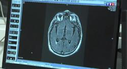 Le 13 heures du 1 février 2014 : D�i d'attente trop long pour passer un IRM : trois plaintes d�s� �trasbourg - 545.619