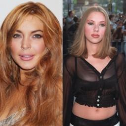 Les stars et la chirurgie esthétique : Avant - après