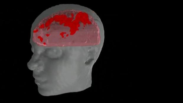 TF1/LCI Images de synthèse de l'activité d'un cerveau