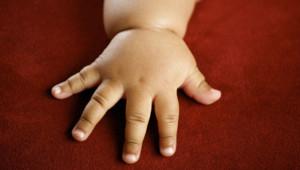 obesité enfant main bébé noir infantile santé surpoids
