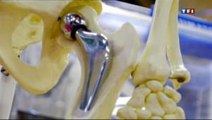 Le 13 heures du 2 mai 2013 : D�uverte de proth�s de hanche sans certifications - 325.74