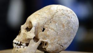 crâne allongé d'une adolescente de l'élite barbare du Ve siècle