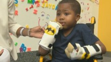Zion Harvey est le plus jeune patient greffé des deux mains.