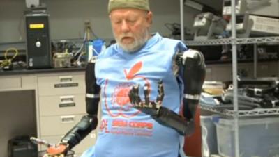 """Un homme amputé retrouve des bras """"robots"""""""