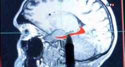 Les capacités du cerveau déclinent dès 45 ans