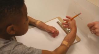 A 9 ans, il fête le 1er anniversaire de ses nouvelles mains