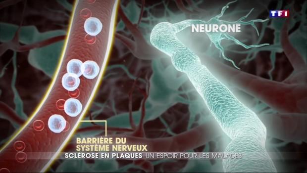 Sclérose en plaques : un espoir contre la maladie