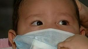 grippe porcine bébé