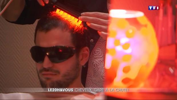 Chute de cheveux : quand les hommes reprennent du poil de la bête