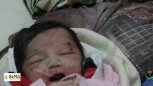 Amel, née à Alep avec un obus dans la tête