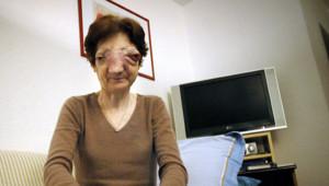 Chantal Sébire euthanasie