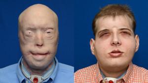 Un pompier volontaire a reçu une greffe totale du visage, du cuir chevelu, des oreilles et des conduits auditifs. Une intervention présentée comme la plus complète à ce jour.