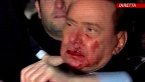 Silvio Berlusconi agression