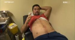 Il est le premier à avoir pris une balle au Bataclan, les soins quotidiens de Sami