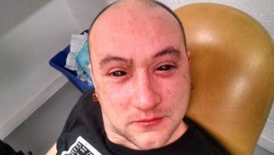 Gabriel Licina reçoit une injection dans les yeux pour voir dans le noir