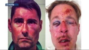 Deux victimes d'agressions homophobes à Paris (8 avril 2013)