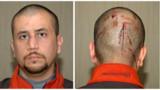 Affaire Trayvon Martin : le tueur présumé George Zimmerman s'excuse