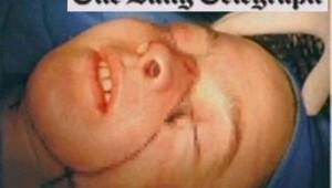 Le Daily Telegraph publie en Une la photo de la première patiente graffée du visage