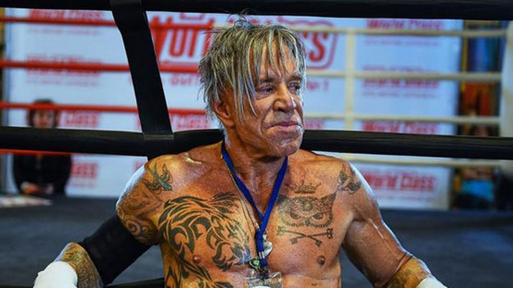 Mickey Rourke Accident Ruins Face