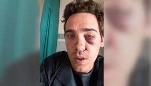 Alexandre Berlin a été violemment agressé à Lyon par des chauffeurs de taxi dans la nuit du 20 au 21 juin 2015