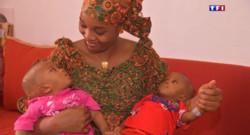 Le 20 heures du 3 juillet 2015 : Médecine : les bébés siamois vont bien - 1136