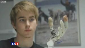 Il sacrifie son bras pour une prothèse bionique